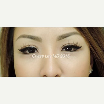 25-34 year old woman treated with Asian Eyelid Surgery after 1748632