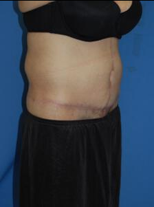 Circumferential Tuck after 863779