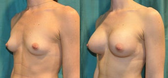 Tear Drop Breast Implants before 1017136
