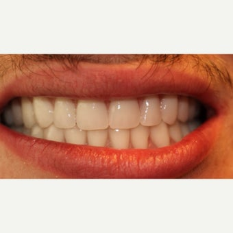 18-24 year old man treated with All-on-4 Dental Implants after 2272790