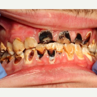 18-24 year old man treated with All-on-4 Dental Implants before 2272790