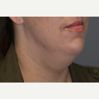 35-44 year old woman treated with Kybella before 3147381