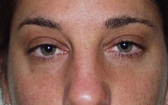 Eyelid Surgery after 228412