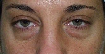 Eyelid Surgery before 228412