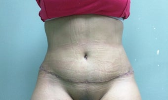28 year old woman treated with Body Lift after 3228197
