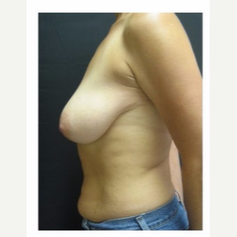 45-54 year old woman treated with Breast Lift before 3175689