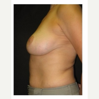 45-54 year old woman treated with Breast Lift after 3175689