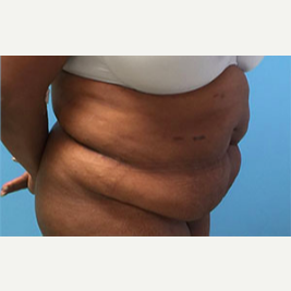 Tummy Tuck before 3278950