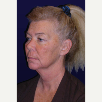 55-64 year old woman treated with Facelift before 3439338