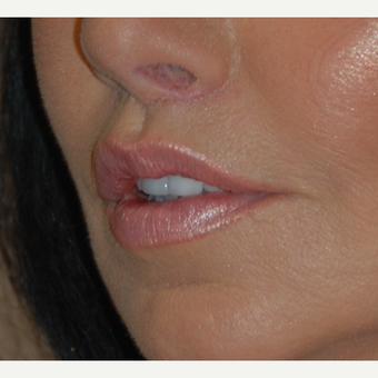 45-54 year old woman treated with Lip Lift 1800293