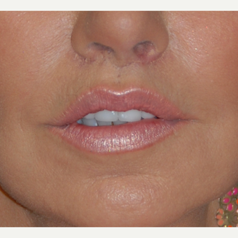 45-54 year old woman treated with Lip Lift after 1800293