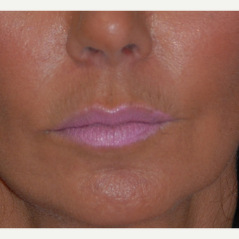45-54 year old woman treated with Lip Lift before 1800293