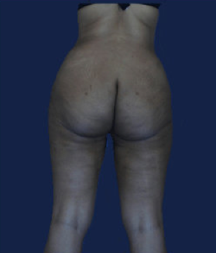 liposuction after 476630