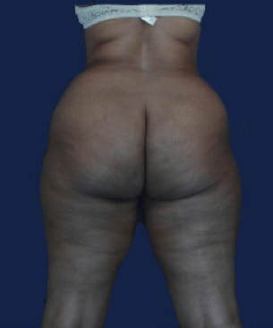 liposuction before 476630