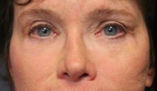 65-74 year old woman treated with Eye Bags Treatment after 3046882
