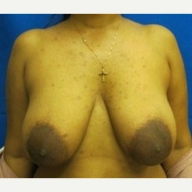 37 year old woman treated with Breast Lift before 1712158