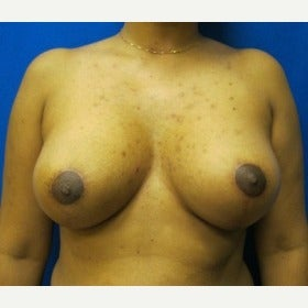 37 year old woman treated with Breast Lift after 1712158