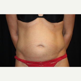 35-44 year old woman treated with Tummy Tuck before 3299449