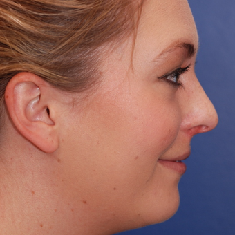 18-24 year old woman treated with Rhinoplasty before 3624123