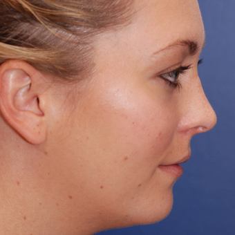 18-24 year old woman treated with Rhinoplasty after 3624123