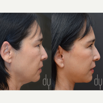 Facelift and Upper Blepharoplasty before 3100714