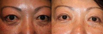 Upper and Lower Eyelid Surgery before 1243716