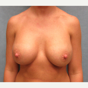 18-24 year old woman treated with Breast Implant Revision after 3635402