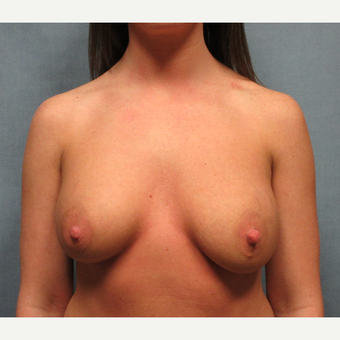 18-24 year old woman treated with Breast Implant Revision before 3635402
