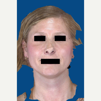 45-54 year old woman treated with Rhinoplasty before 3037539