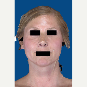 45-54 year old woman treated with Rhinoplasty after 3037539