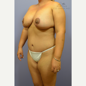 25-34 year old woman treated with Mommy Makeover after 3391863