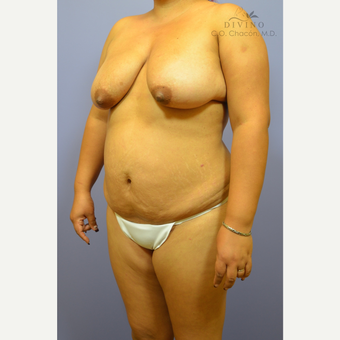 25-34 year old woman treated with Mommy Makeover before 3391863