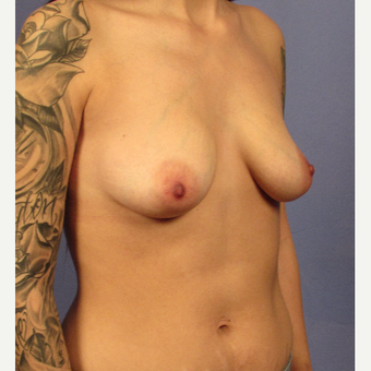 25-34 year old woman treated with Breast Augmentation before 3095744