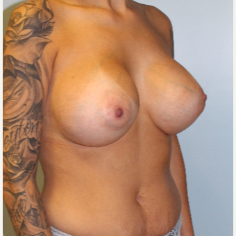 25-34 year old woman treated with Breast Augmentation after 3095744