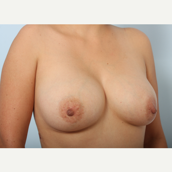 Breast Augmentation after 3340028