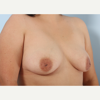 Breast Augmentation before 3340028