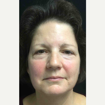 55-64 year old woman treated with Eyelid Surgery before 3218635