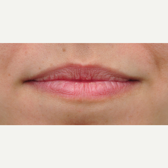 25-34 year old woman treated with Lip Augmentation before 3565261