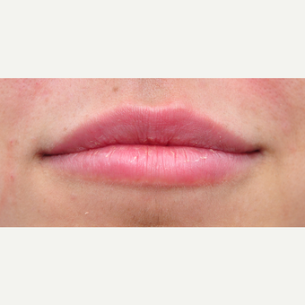 25-34 year old woman treated with Lip Augmentation after 3565261