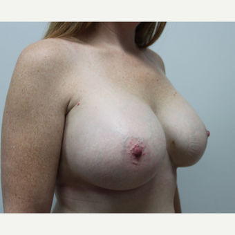 35-44 year old woman treated with Breast Augmentation after 2924930