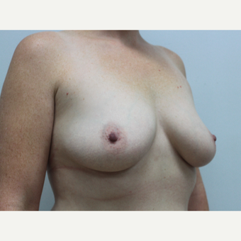 35-44 year old woman treated with Breast Augmentation before 2924930