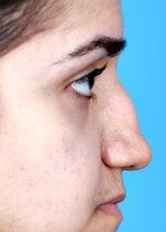 27 yo female treated for saddle nose deformity and hollow eyes  before 1484302