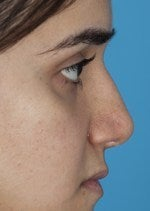27 yo female treated for saddle nose deformity and hollow eyes  after 1484302