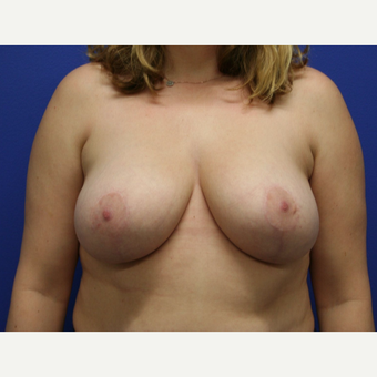 25-34 year old woman treated with Breast Reduction after 2994121