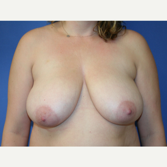 25-34 year old woman treated with Breast Reduction before 2994121