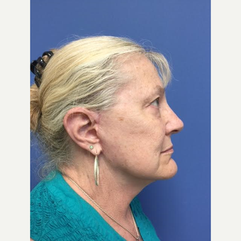 65-74 year old woman treated with Mini Lift after 3684489