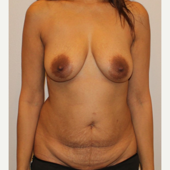 45-54 year old woman treated with Mommy Makeover before 3372593