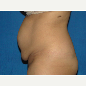 36 year old treated with Tummy Tuck before 3776146
