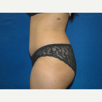 36 year old treated with Tummy Tuck after 3776146