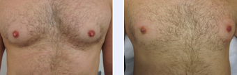 46 Year Old Male Nipple Reduction Patient  before 1346687